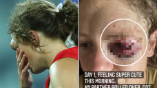 Western Bulldogs AFLW player Ashleigh Guest unveils aftermath to eye injury