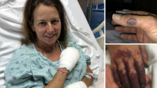 Mother issues warning after losing legs and fingertips from sepsis