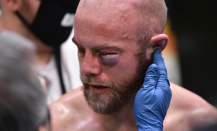 UFC Fight Evening 184: Justin Jaynes suffers nasty eye distress, which ends fight vs. Devonte Smith