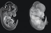 Mouse embryos grown outside of uterus in latest feat of Israeli lab