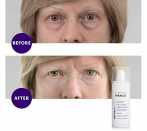This Instant Eyelift Serum Can also Initiate Working in Correct 90 Seconds