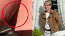 Scottish mum Seonag MacKinnon discovers melanoma on leg while getting a massage