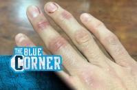 Bellator 262 reactions: Winning and losing fighters on social media